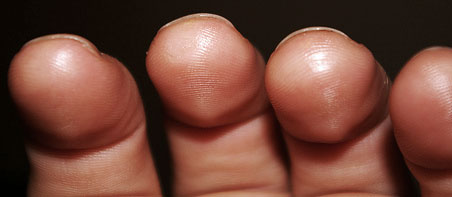 How to develop guitar calluses